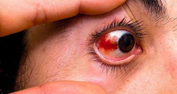 О чем говорят красные глаза, и что с ними делать
