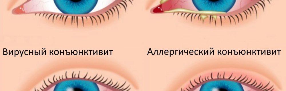 Это эффективное народное средство поможет при конъюнктивите