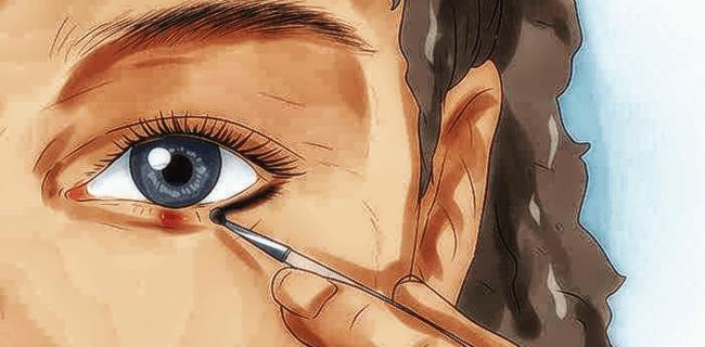 Ячмень на глазу — врачи назвали 7 причин появления