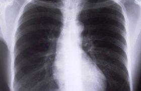 Туберкулез легких. Образование полостей