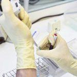Стало известно о вспышке гепатита А на Украине