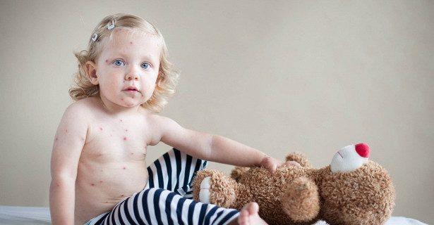 Корь возвращается: история о вреде неверия в вакцинацию