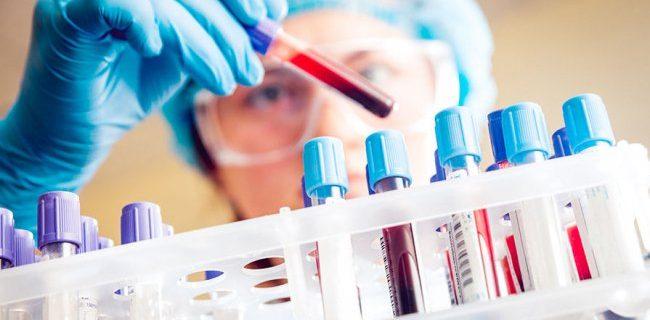 Популярный контрацептив повышает риск заражения ВИЧ