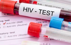 Новый тест может упростить диагностику ВИЧ-инфекции