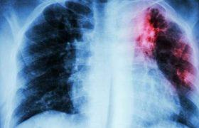 Обнаружено соединение, которое поможет бороться с туберкулезом