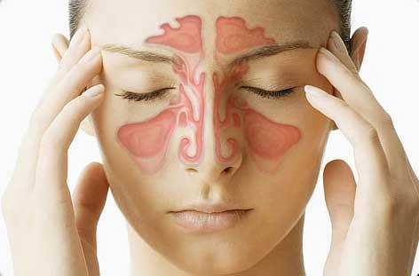 Гайморит: причины, симптомы и лечение