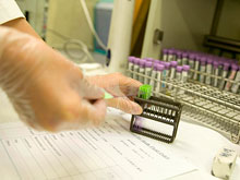 Создан прибор, максимально быстро определяющий риск инфекции