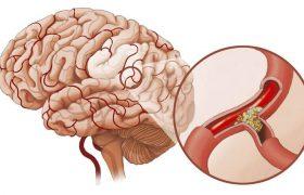 Атеросклероз: факторы риска, диагностика и лечение заболевания