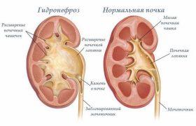 Хирургические процедуры при гидронефрозе почек
