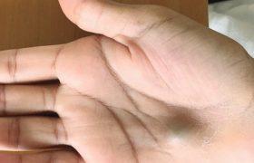 Шишка на руке после визита к дантисту оказалась опасной инфекцией