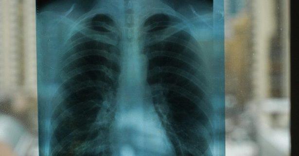 Россияне стали реже умирать от туберкулеза