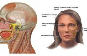 Лицевая синкинезия – причины и симптомы