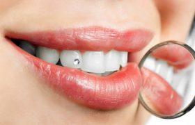 Стоматология. Косметическая стоматология — новый способ повышения Вашей индивидуальности
