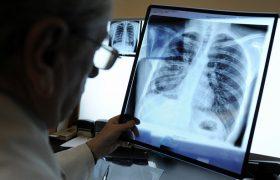Больным туберкулёзом придётся вести себя ответственно