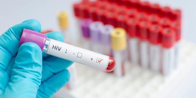 ВИЧ: больше не смертельная болезнь