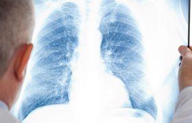Антибиотик не помогает в каждом четвертом случае воспалении легких