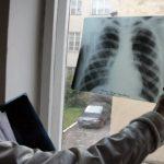 Более 20% пациентов с пневмонией не отвечают на антибиотикотерапию
