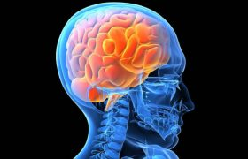 Все о сотрясении мозга