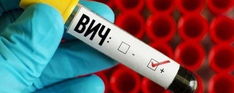 Разработана методика, позволяющая полностью излечивать ВИЧ