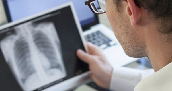 8 признаков пневмонии