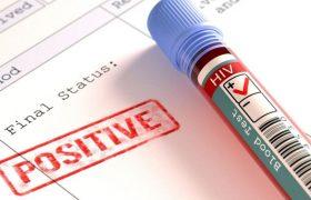 В России вырос уровень заражений ВИЧ среди людей от 50 до 60 лет