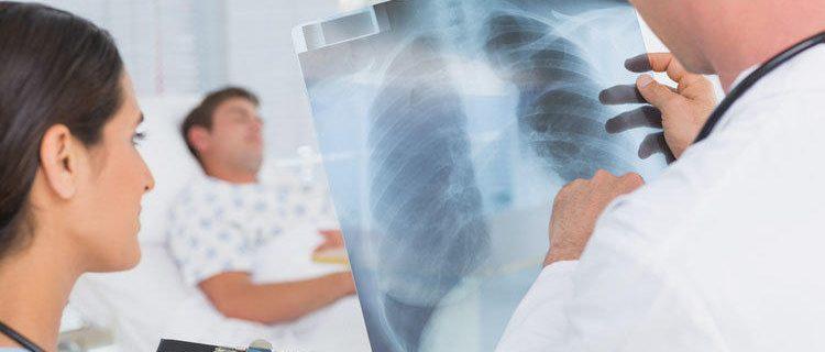 Как грипп помогает пневмонии