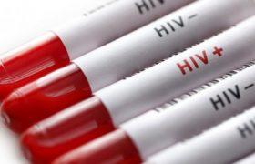 Эксперт считает естественным процессом рост числа ВИЧ-инфицированных