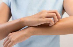 Врач заявил, что большинство считающих себя аллергиками страдают от псевдоаллергии