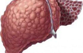 Инфекционный мононуклеоз. Лечение