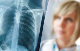 Врач-пульмонолог указала на первый признак больных легких