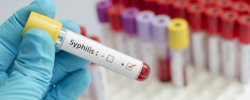 Запущенный сифилис лишил речи и подвижности
