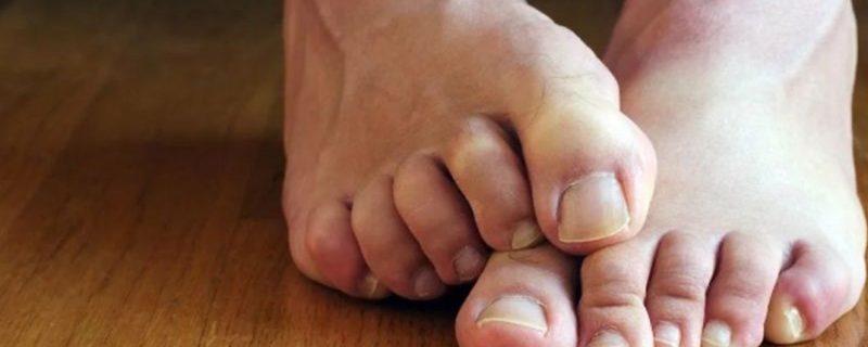 Домашние средства от грибка ногтей: помогают ли спирт, уксус и масло чайного дерева?