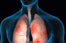 В Таганроге у детей диагностирована внебольничная пневмония