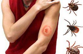 Клещевой боррелиоз (болезнь Лайма) — симптомы, лечение и последствия боррелиоза