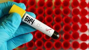 Как обнаружили СПИД