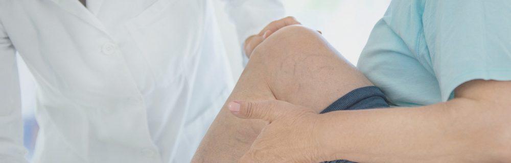 Профессиональная флебология в Тюмени