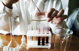 Общий анализ крови. Плазма крови. Биохимические показатели