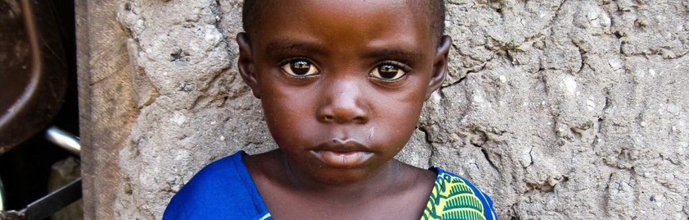 Чернокожие дети с COVID-19 более подвержены схожему с «Кавасаки» синдрому