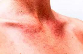 Инфекции кожи и мягких тканей