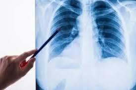 Обучение гигиене полости рта может значительно уменьшить пневмонию в домах престарелых