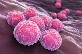 Хламидиоз: причины, осложнения, диагностика и лечение