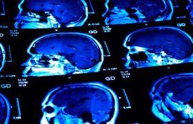 Новое в лечении аутоиммунных заболеваний: как «отговорить» лейкоциты атаковать ткани своего организма