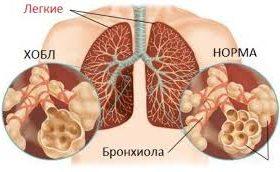 Что такое хроническая обструктивная болезнь легких (ХОБЛ)