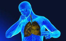 В России зарегистрирован нинтеданиб для лечения хронических фиброзирующих интерстициальных заболеваний легких
