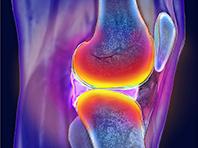 Ученые поняли, как победить боли в суставах