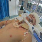 Многие люди остаются в сознании под общей анестезией
