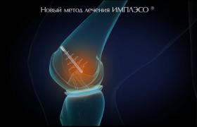 Лечение артроза — ИМПЛЭСО®, быстро и эффективно