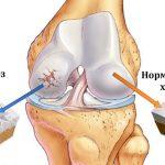 Артроз коленного сустава