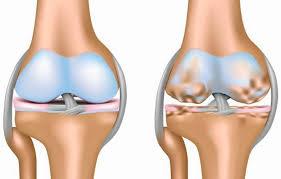 Ученые смогли обратить вспять развитие остеоартрита