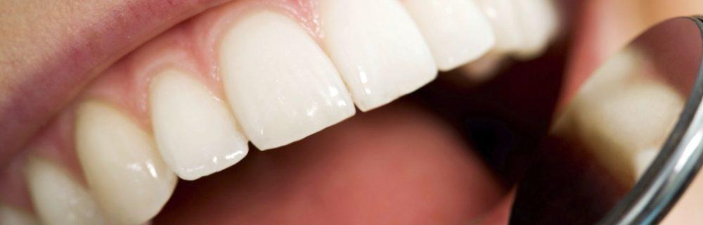 О здоровье зубов и десен